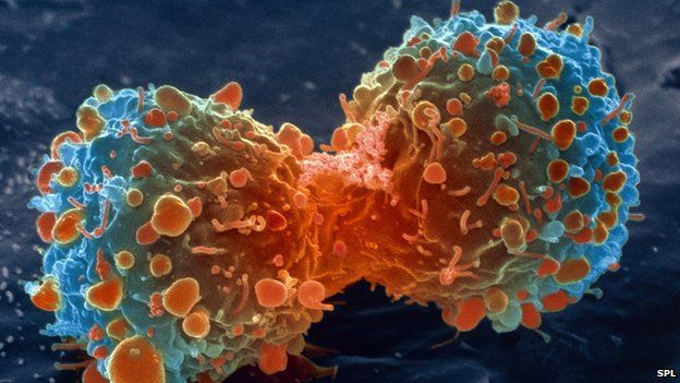 sel-kanker-paru-paru